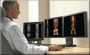 Watson czyli nowy system komputerowy dla lekarzy